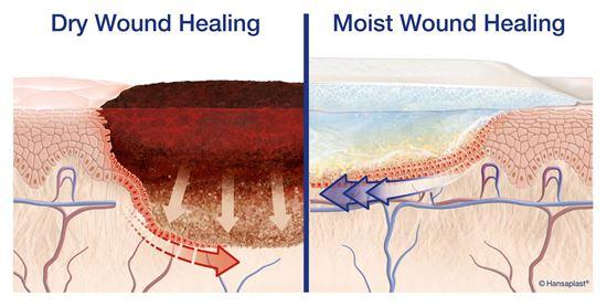 Elastoplast fast healing